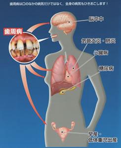 歯周病は全身にも影響を及ぼす病気です!