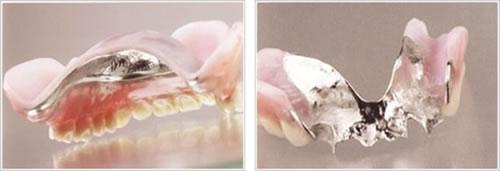 歯周病と義歯