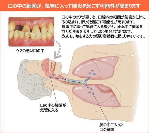 歯周病と介護