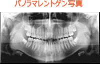 歯周病と骨粗しょう症