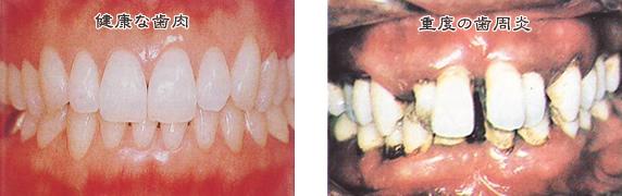 健康な歯肉と重度の歯周病